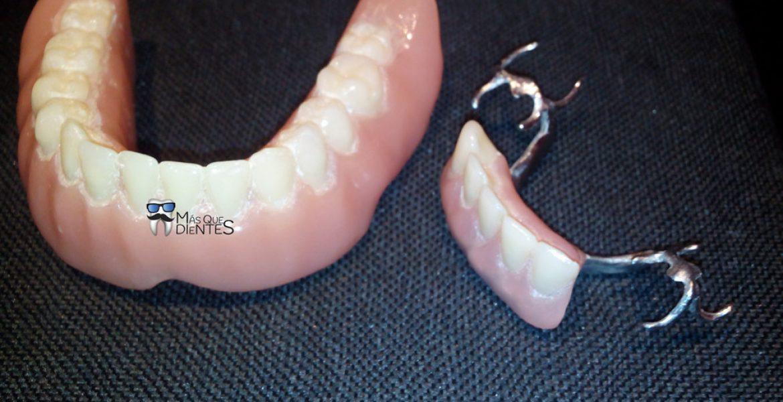 Tipos de protesis removibles